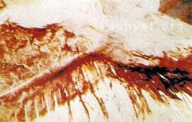 viagra effects on male fertility